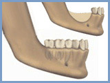 Bone augmentation