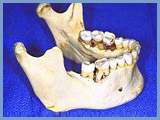 Bone resorption - Timely implantation helps to prevent it