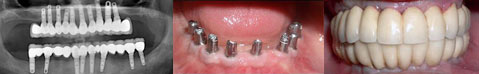 implant usage - case 4