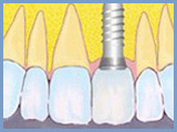 Tooth implantation