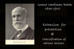 G.V.Black - Extension for prevention
